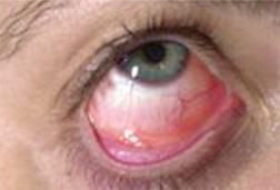 Bacterial Conjunctivitis — Pink Eye Information